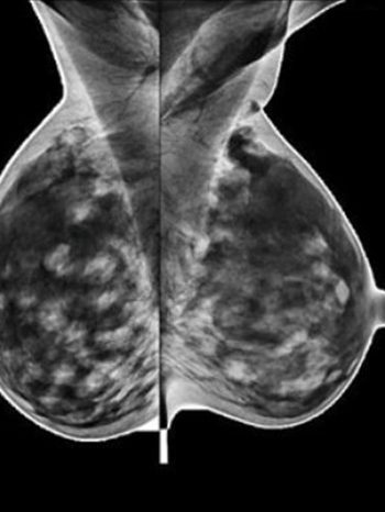 banner-mammografia